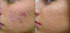 علاج حبوب الوجه الحمراء