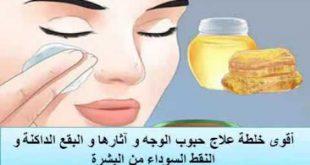 علاج حبوب الوجه واثارها